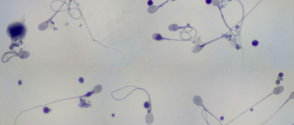 low-sperm-count