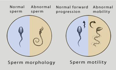 Hình ảnh tinh trùng yếu 1