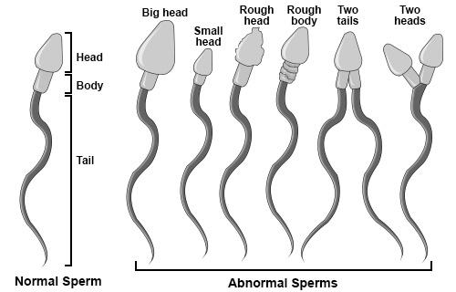 Tinh trùng hình thái bất thường 1